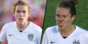 Kelley O'Hara's bloody nose against China